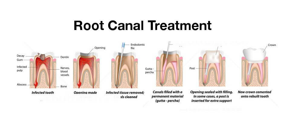 root canal treatment diagram